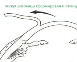 az egyenes vonalak látástorzulása)
